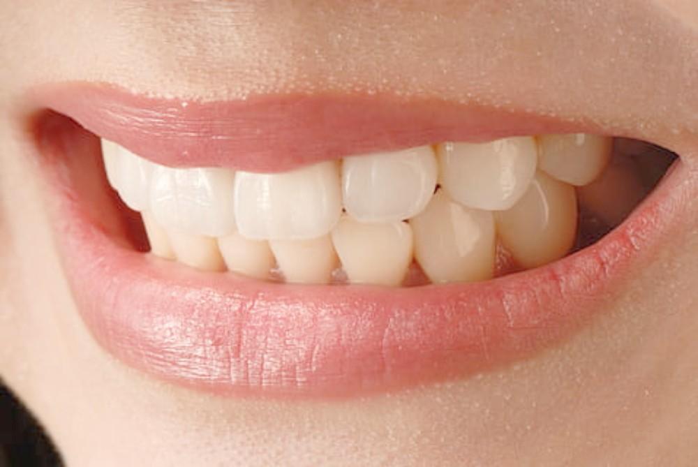 Estrés y dolor de dientes durante el confinamiento