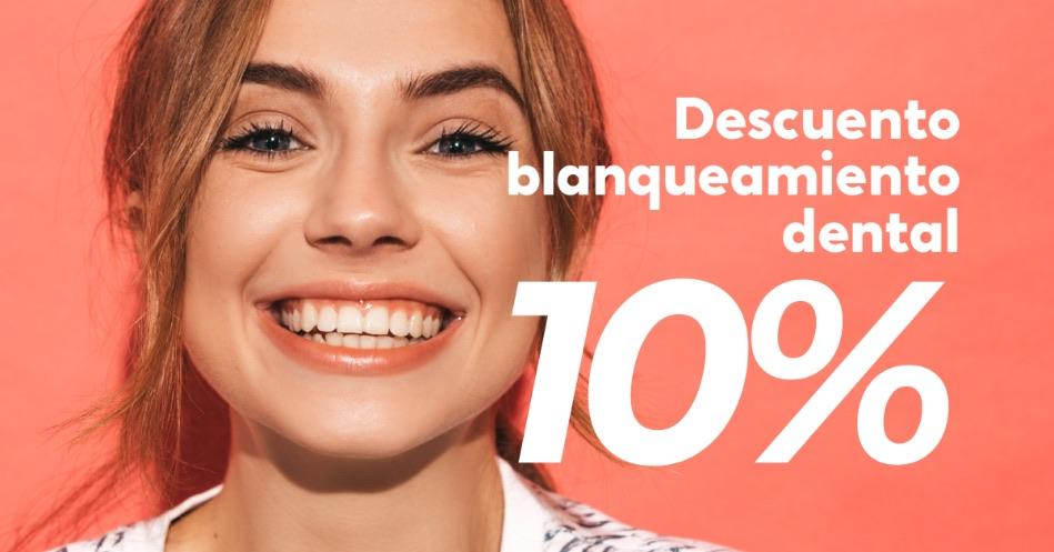 Blanqueamiento dental en tu clínica dental de Marbella