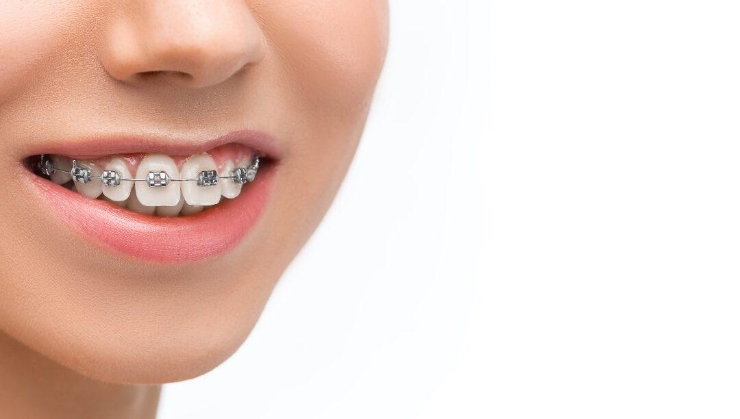 descuento-ortodoncia-vasaldora-clinica-dental-marbella