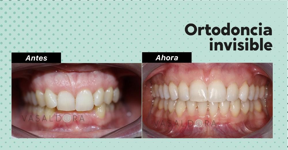 Todo lo que hay que saber sobre la ortodoncia invisible Invisalign