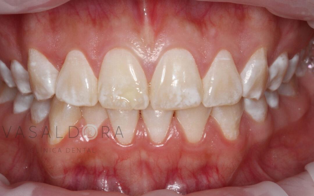 ¿Por qué mi hijo tiene manchas en los dientes?