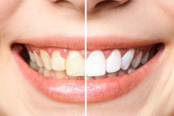 Blanqueamiento dental: dientes blancos y sin manchas